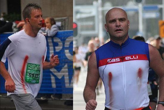 科普:马拉松运动员为什么容易乳头出血